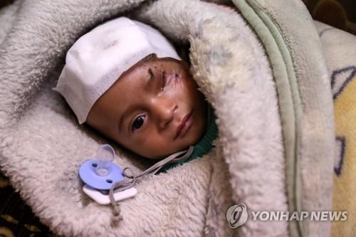 시리아군의 공습에 한쪽 눈을 잃은 동구타 아기 카림