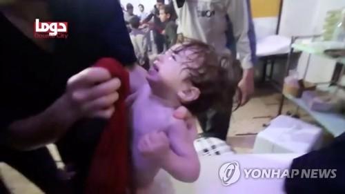 화학무기 의심 공격 벌어진 두마의 아기