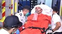 홍콩 또 ′백색테러′…시위 주도 단체 대표 ′쇠망치 테러′ 당해